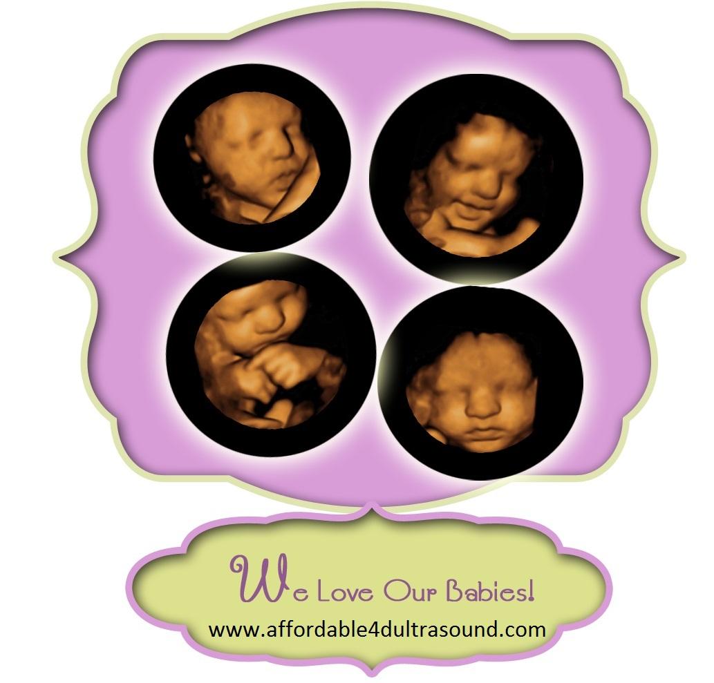 4D Ultrasound Houston, Affordable 3D/4D Ultrasound